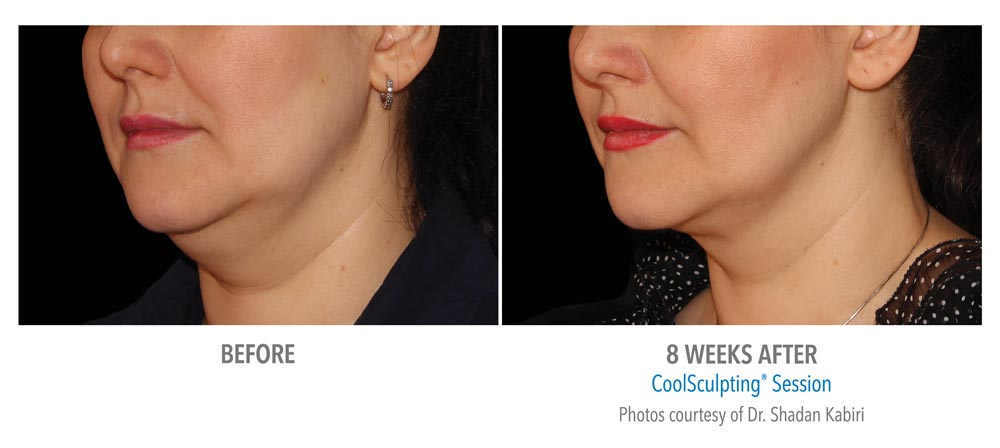 Before and after coolsculpting treatment for chin fat