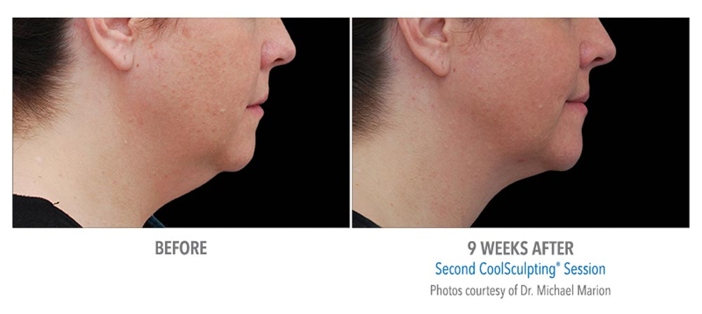 9 weeks after coolsculpting to remove extra chin fat
