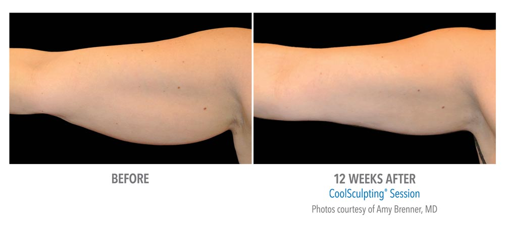 Before and after bingo wings treatment with coolsculpting