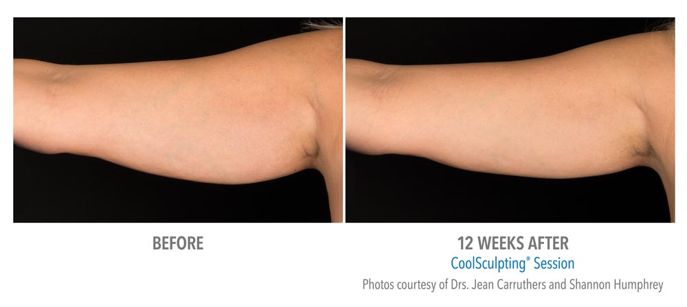 Before and after coolsculpting treatment to remove extra arm fat