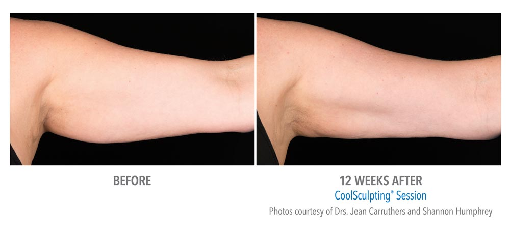 Left arm before and after coolsculpting treatment to remove extra flab