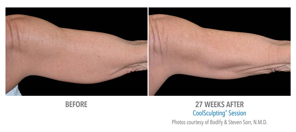 Before and after flabby arms treatment using coolsculpting