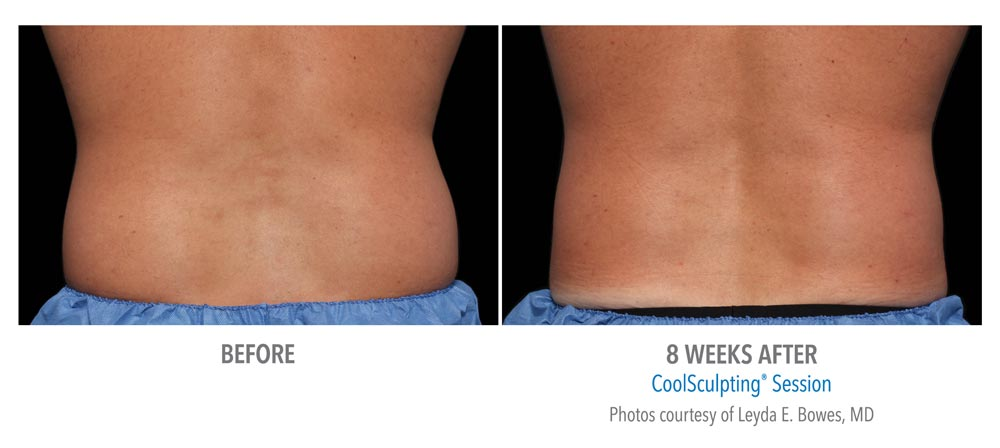 before and after back fat reduction