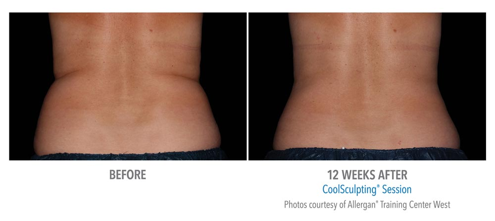 Back fat reduction after coolsculpting treatment