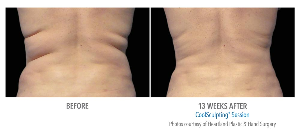 CoolSculpting® before and after stubborn back fat removal