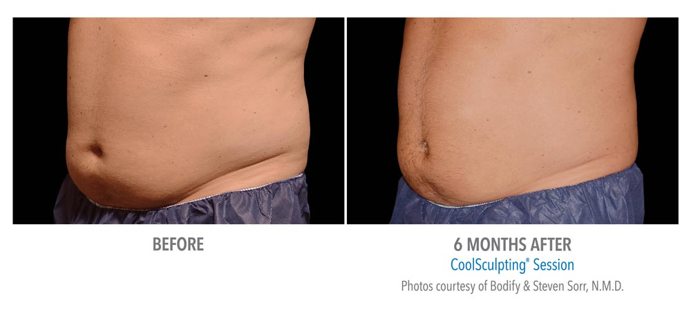 Before and after belly fat removal using coolsculpting