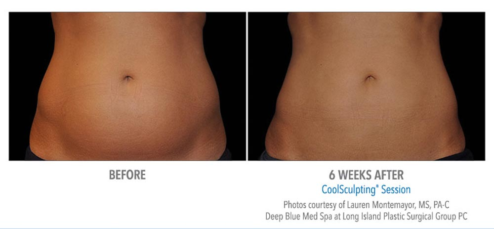 Before and after excess abdominal fat removal using coolsculpting