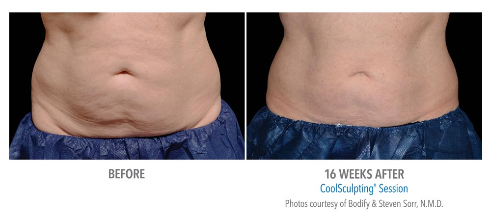 16 weeks after abdominal fat reduction using coolsculpting