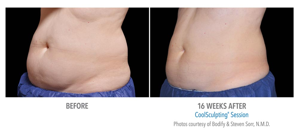 Before and after belly fat treatment