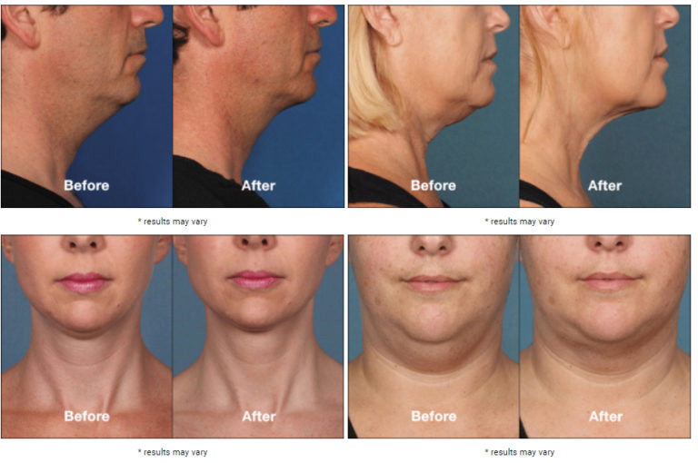 Kybella before and after images