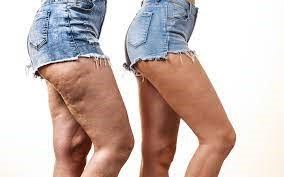 qwo cellulite treatment before and after